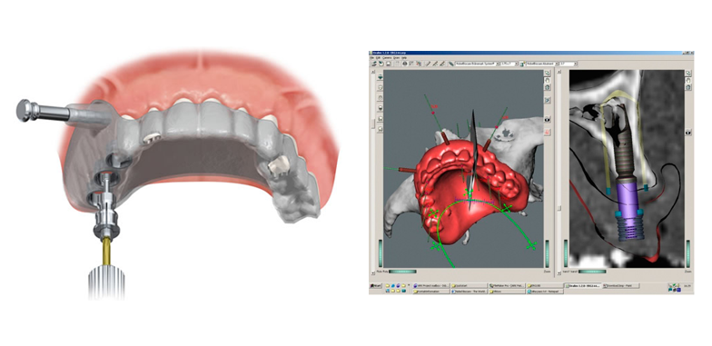 Digital Dentistry & Computer-Guided Surgery