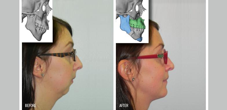 Understanding Jaw Surgery