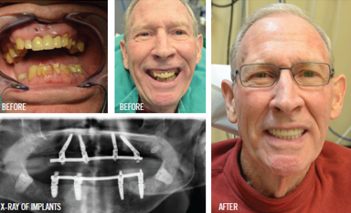 Teeth In A Day – or in Five Hours!